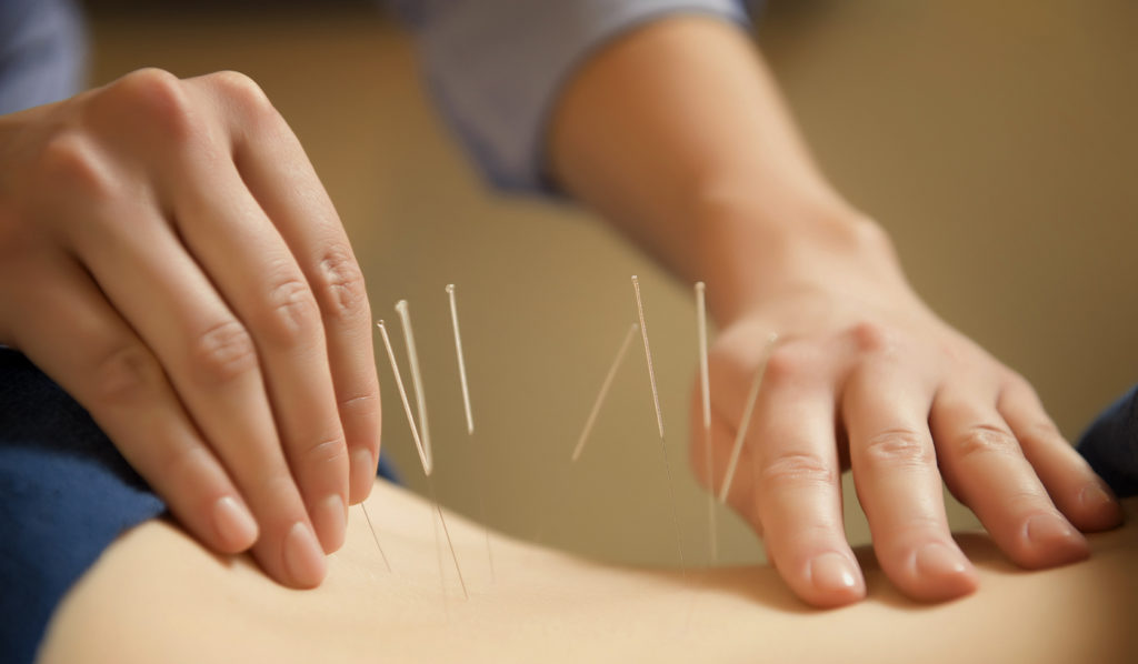 Acupuncture: How it Works and the Benefits